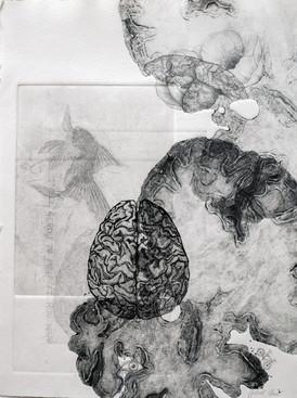 Cartographie d'un cerveau