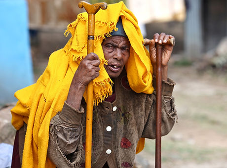 Impoverished homeless man
