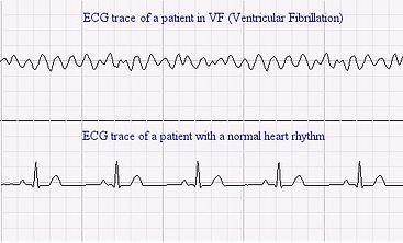 ecg_example4.jpg