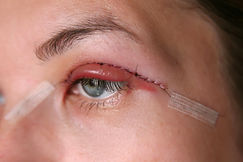 Double Eyelid Surgery, Eyes Surgery Reco