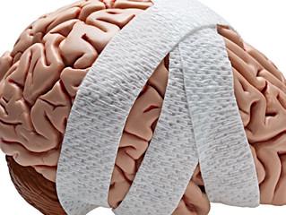 Hjernerystelse - Goddag..dag..dag, Sten