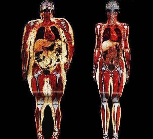 comparaison du tissu adipeux dans les cas d'obésité