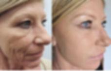 wrinkles skin care  Dr. Bret Bruder Botox