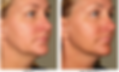 Ultherapy Dr. Bret Bruder Botox