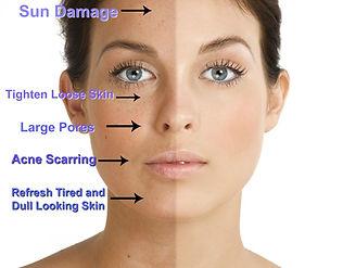 sun damage wrinkles  Dr. Bret Bruder Botox