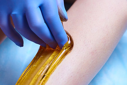 An application of golden clear sugaring