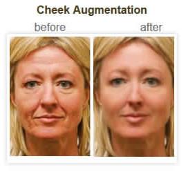 Cheek Augmentation treatment London