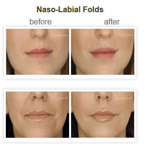 Naso Labial Folds