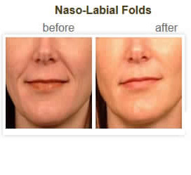 Naso-Labial Folds