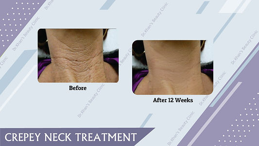 neck ageing treatments London