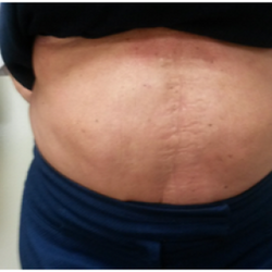 Fat removal London