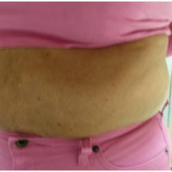 Mesolipolysis treatment