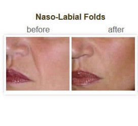 Naso-Labial Folds