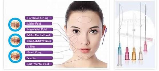 PDO Thread Lift treatment London Beauty Spot
