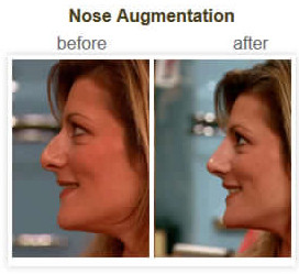 Nose augmentation treatment