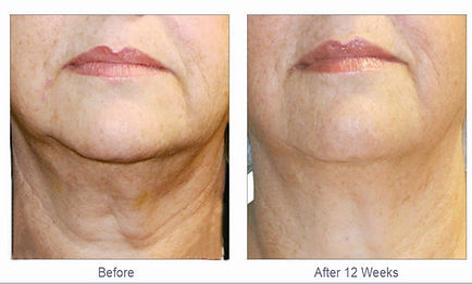 ageing neck treatment