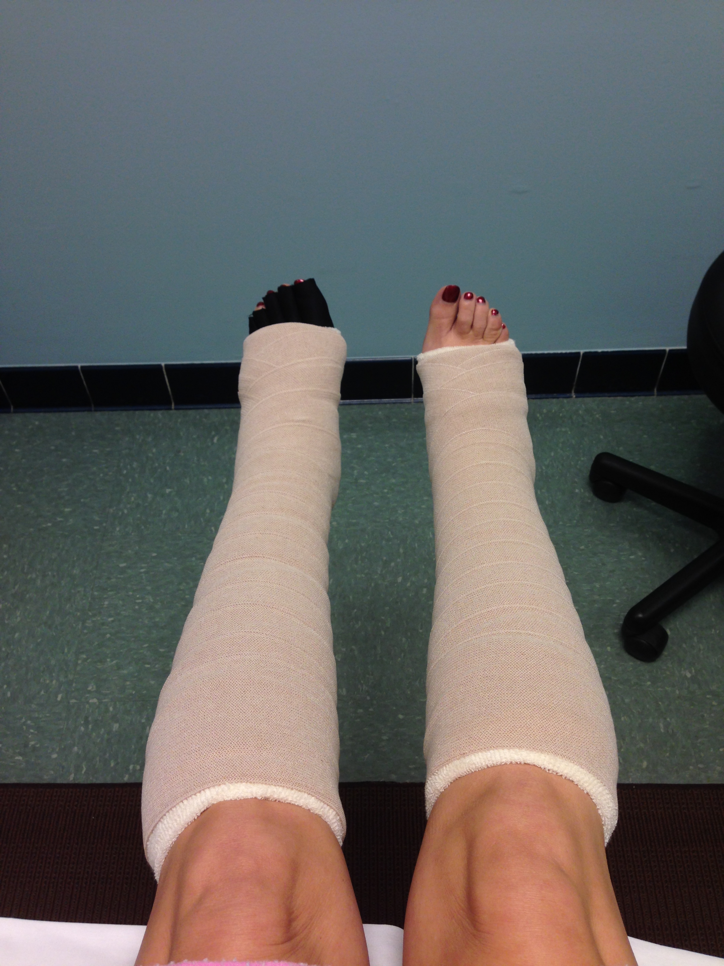 Amy Santiago_Lymphedema Bandaging