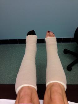 Amy Santiago_Lymphedema Bandaging