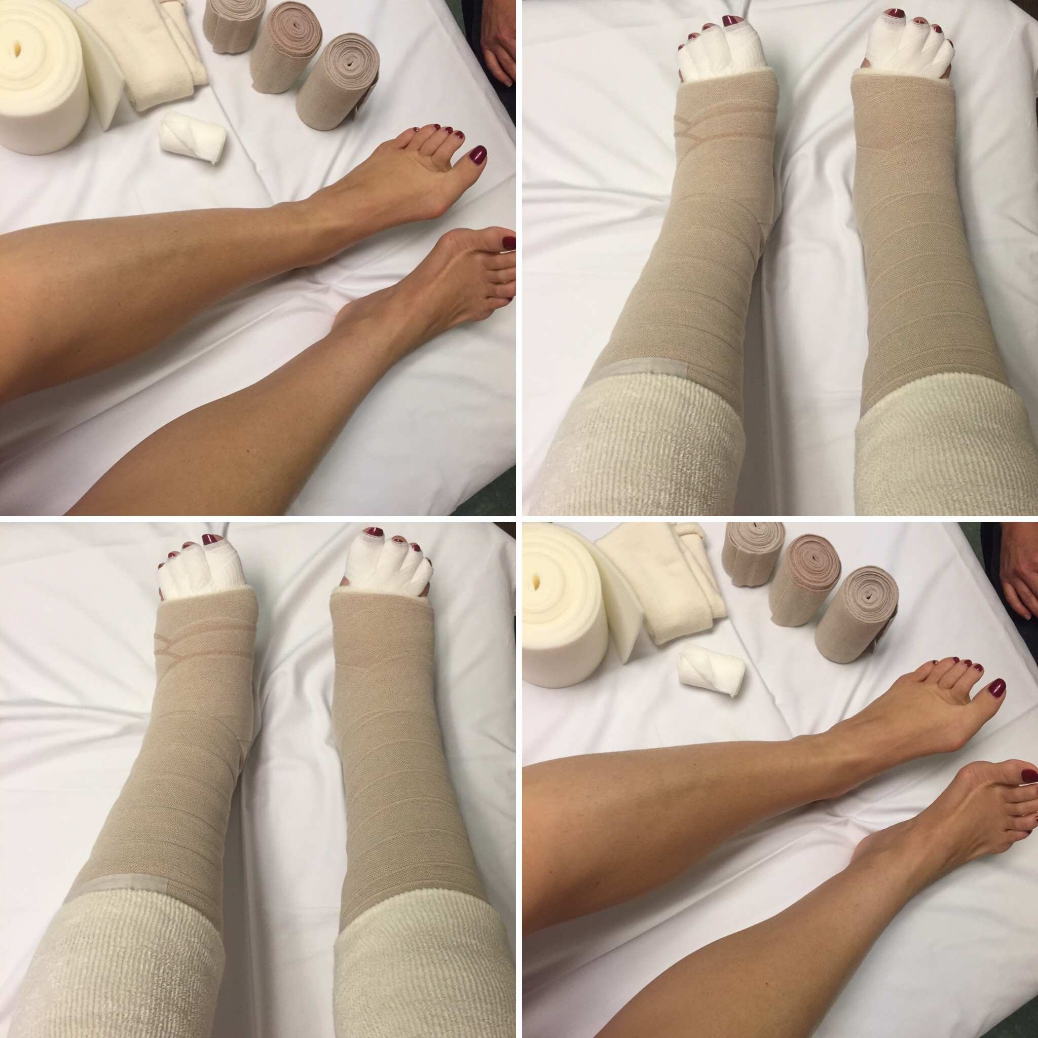 Amy Santiago_Lymphedema Treatment