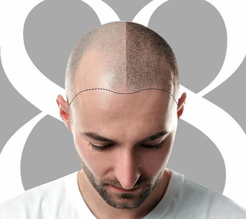 hair988.jpg