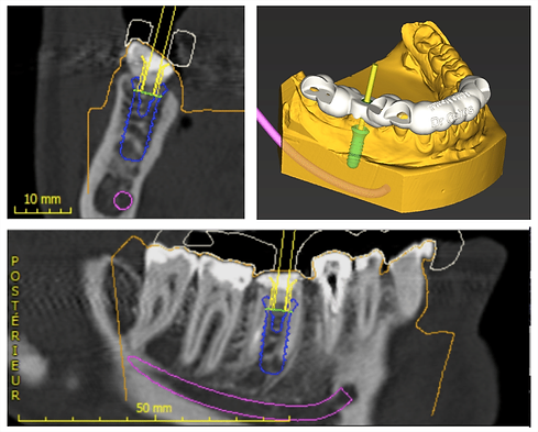 Computing-3D-planning-for-implant-
