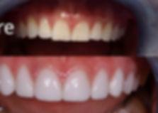 porcelain-veneers-before-after-800x385.j