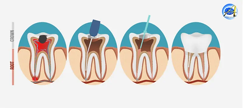Root-Canal.webp
