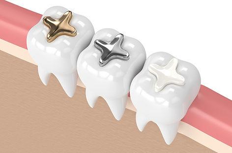 dental filling.jpg