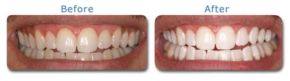 teeth whitening before after