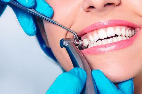 teeth-cleaning-dental.jpg