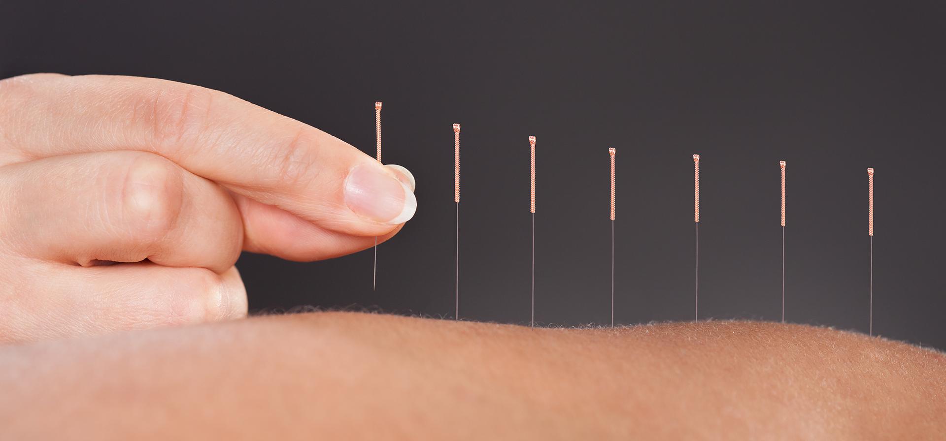 Betiina Larsen - Akupunktur
