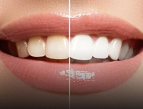 TeethWeighting.png
