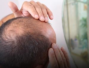 HairLoss-Treatments.png