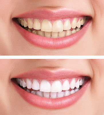 Amazing Teeth Whitening