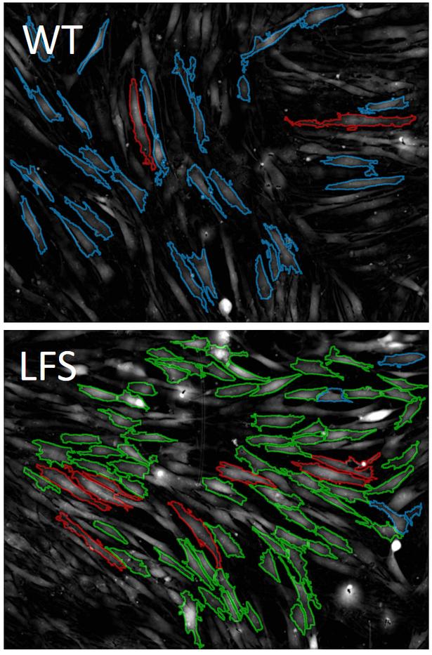 Dermal Fibroblasts