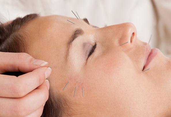 bigstock-Woman-receiving-facial-acupunc-24865028.jpg