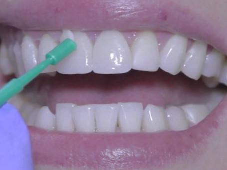 Importancia del flúor para los dientes
