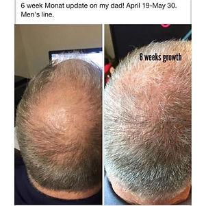 male pattern hair loss, monat intense repair treatment