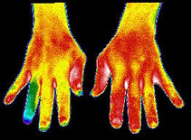 Thermography Body Parts of Interest Scan