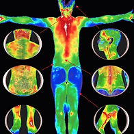Thermography Full Body Scan