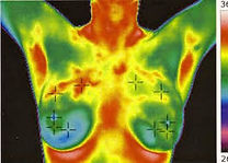 Thermography Breast Scan
