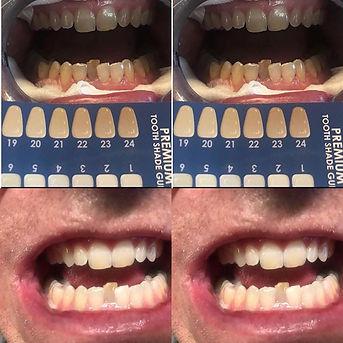 #teethwhitening #dentalhygienist #teeth