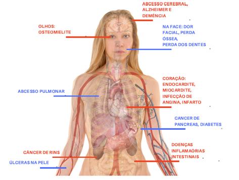 Alerta: Bactérias e Toxinas na boca