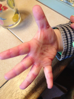 Troublesome hands, even now