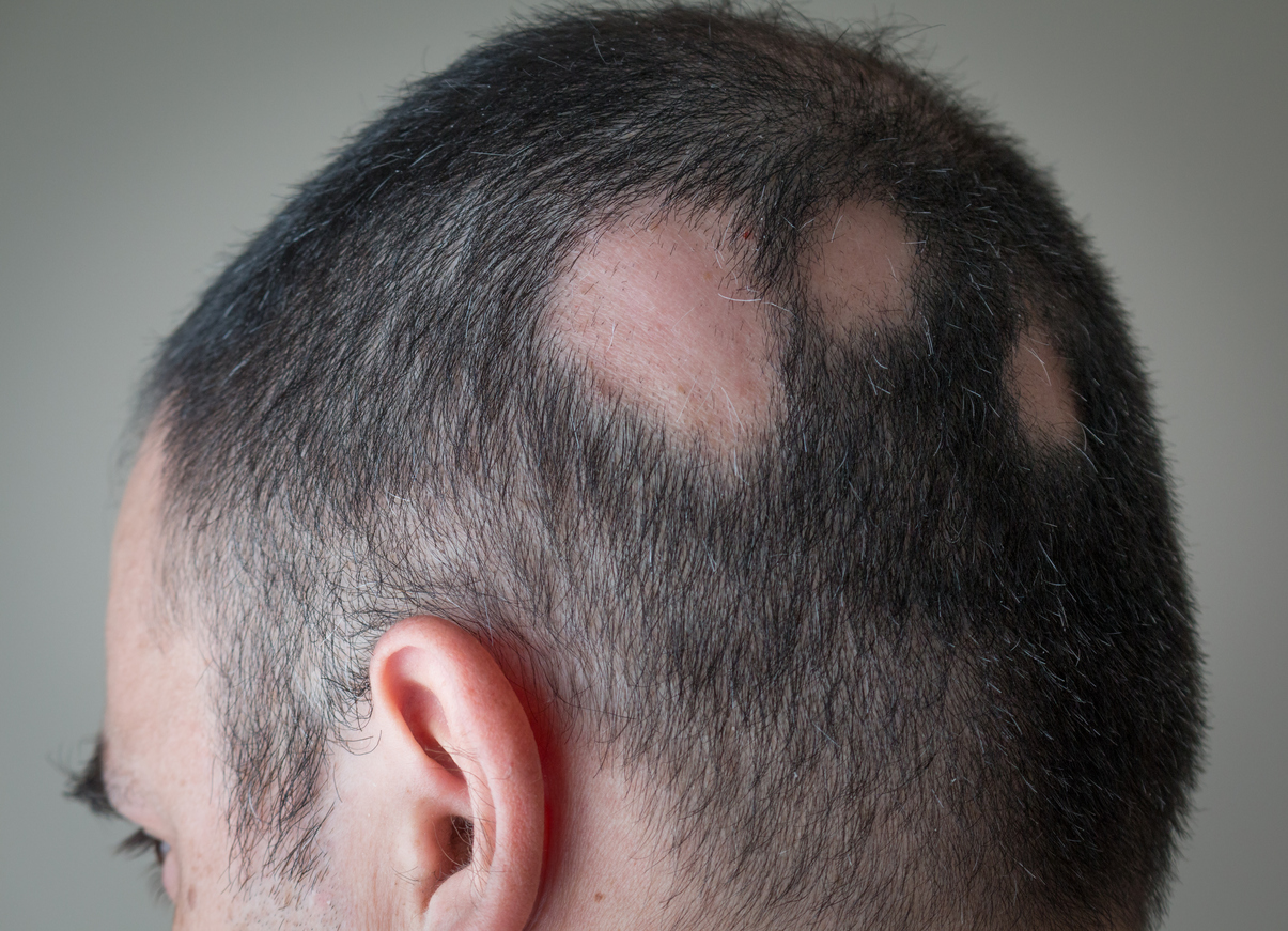What it's really like to have sex when you've got alopecia