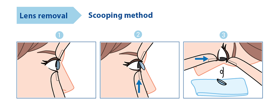 len remove scooping-01-01.png