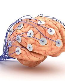 mozog-efg-dioda-elektroda-detektor-lzi-k
