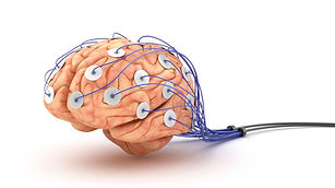 mozog-efg-dioda-elektroda-detektor-lzi-klamat-klamar-clanokW.jpg