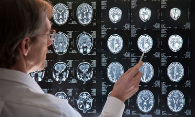 Research into NF for Parkinson's