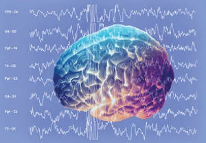 The nctNeurofeedback treatment